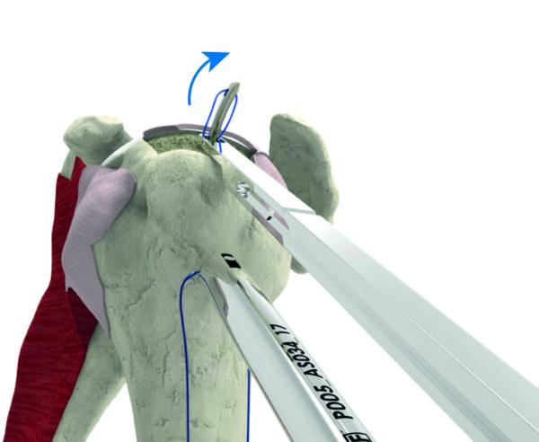 Stitcher met humerus